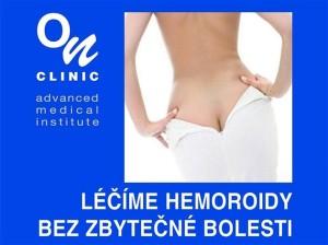 Léčba hemoroidů